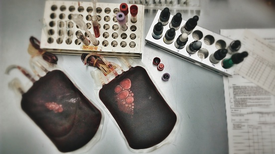 High Angle View Of Blood Bags With Samples On Table In Hospital